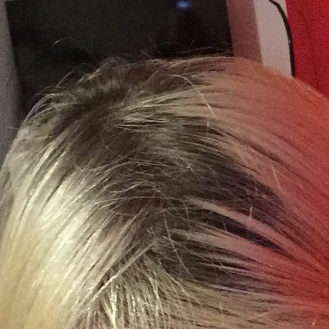 Mein Haaransatz - (Haare, Friseur, Tönung)
