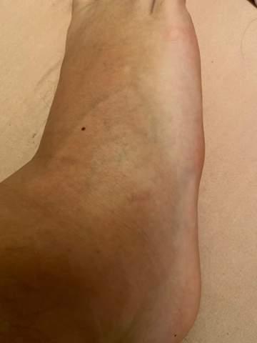 Umgeknickt und auf der anderen Seite vom Fuß blau
