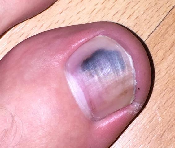 Fußnagel - (schwarz, fußnägel)