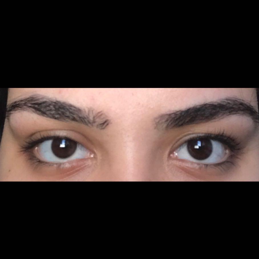 Unschönes Augenlid bzw. Auge? (Arzt, Augen, OP)