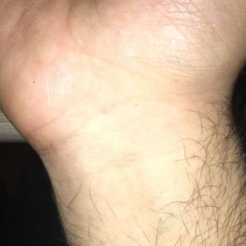 Unterarm  - (Arm, Unterarm)