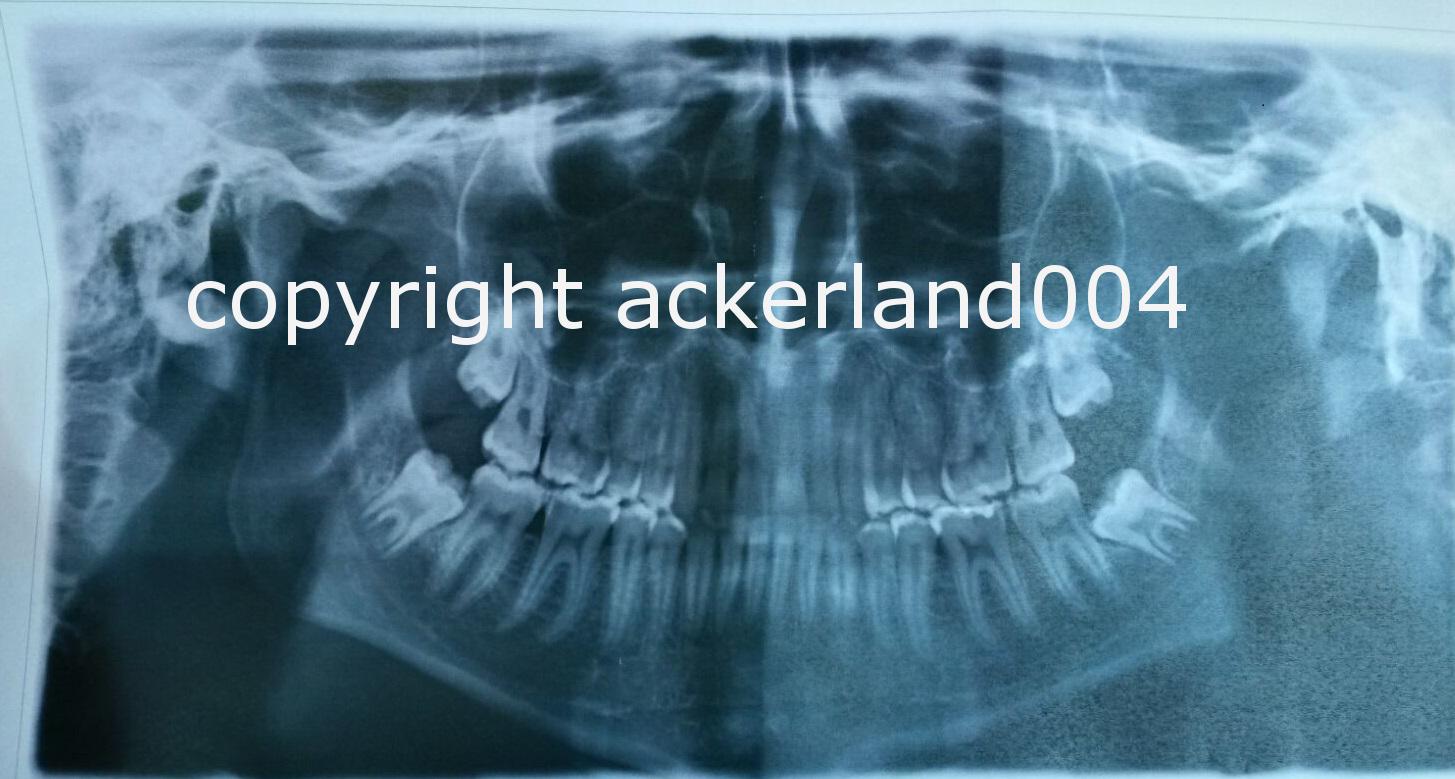 Untere Weisheitszähne ziehen lassen? (Zähne, Zahnarzt, Kiefer)