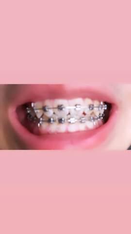 Unterer Zahngebiss mehr nach links als beim oberen, ist das normal?