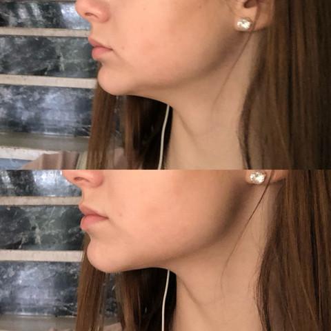 Das obere Bild = normal Zustand  Unteres Bild = Kiefer richtig gestellt  - (Gesundheit und Medizin, Zahnspange, OP)