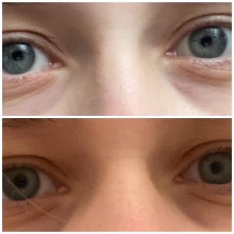 Unterschiedlich pupillen bedeuten was große Psychologie: Unsere