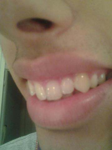 .... - (Beauty, Zähne, Zahnarzt)