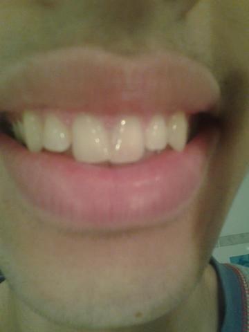 ............. - (Beauty, Zähne, Zahnarzt)