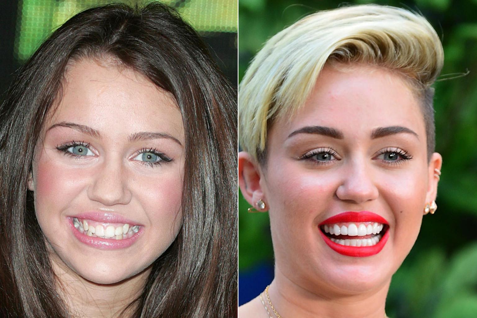 Verändern Sich Zähne? (Alter, Miley Cyrus, Erwachsen