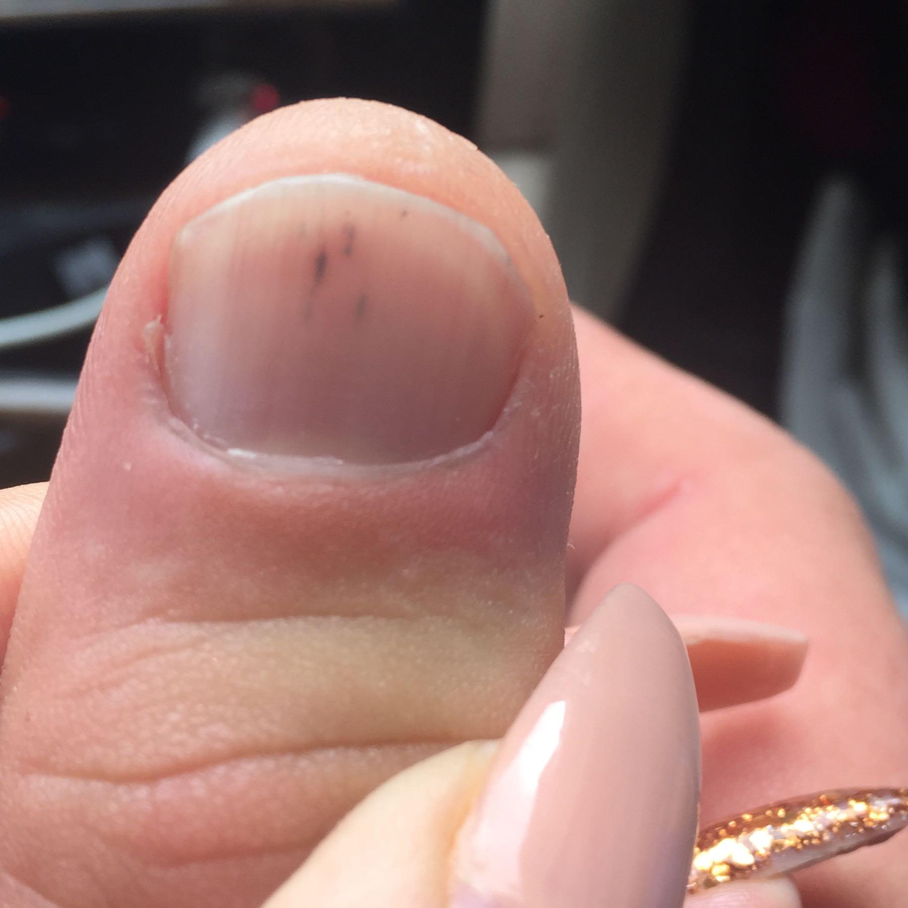 Die Salbe von gribka auf der Haut des Beines