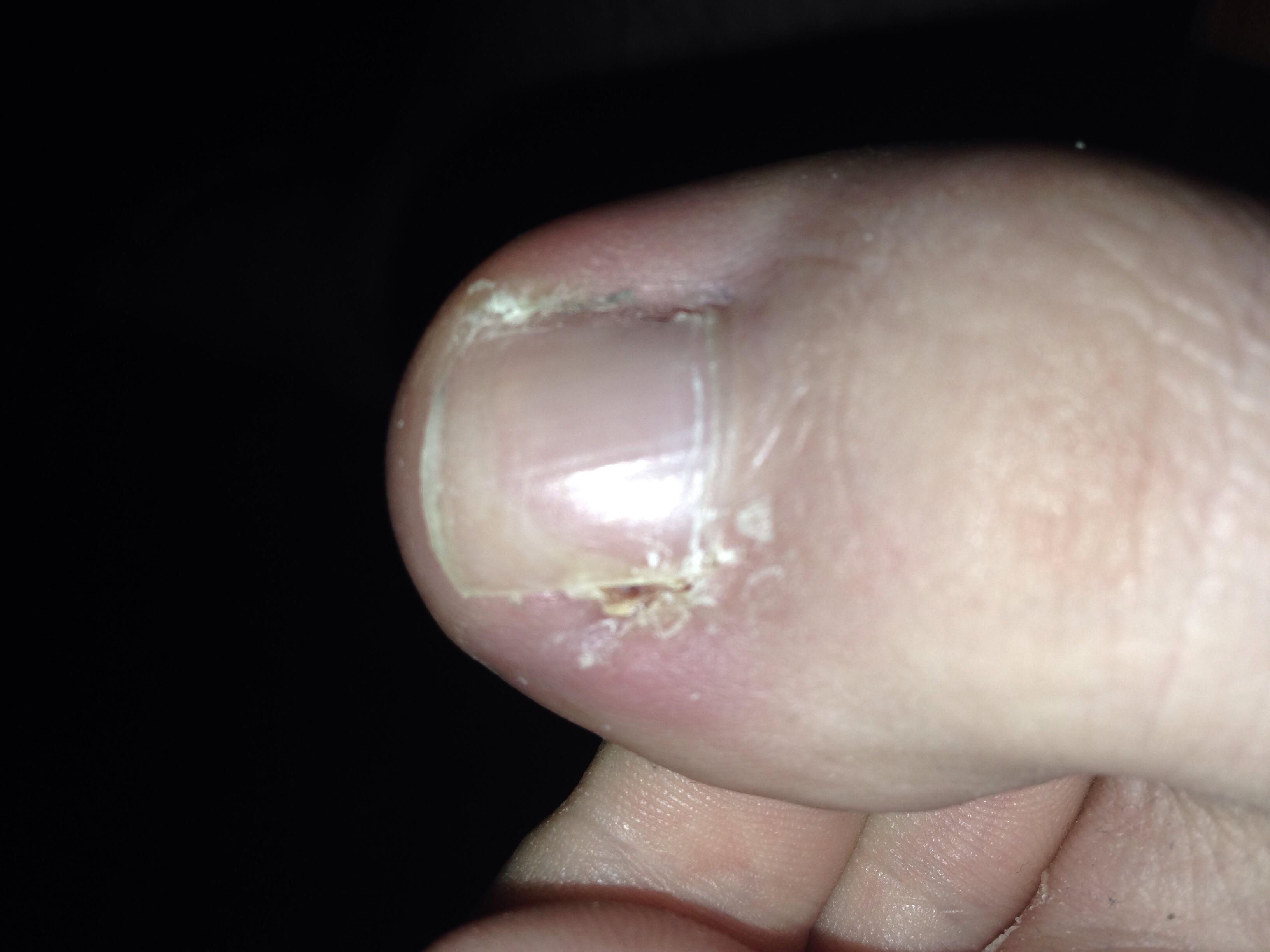Verfärbung unter dem Nagel/am Nagel, was ist das? (Gesundheit, Nägel)