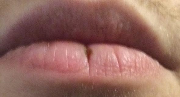 Entspannte Lippe - (Gesundheit, Medizin, Arzt)