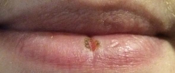 Gespannte Lippe/offene Wunde - (Gesundheit, Medizin, Arzt)