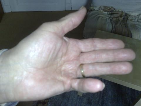 Verkürzte Sehnen In Der Hand Was Tun Gesundheit Medizin Körper
