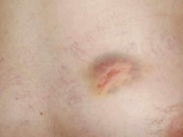 Verletzung im Brustbereich - (Schmerzen, Folgen, Brustbereich)