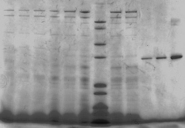 SDS-Page ohne Markierungen - (Biologie, Wissenschaft, SDS-page)