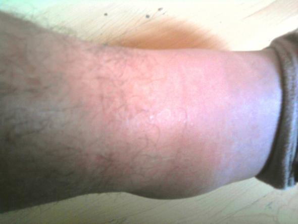 Kranker Fuß - (Wasser, Bruch, Thrombose)