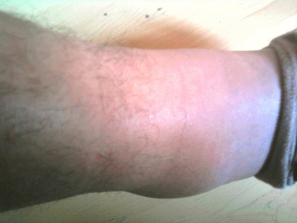 Kranker Fuß 2 - (Wasser, Bruch, Thrombose)