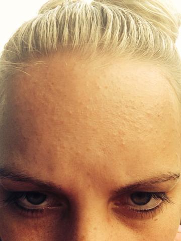 Stirn - (Pickel, Unreinheiten)
