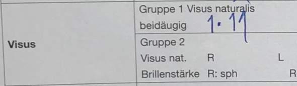Visius Dioptrie 1* 11?