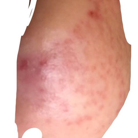 Akne  - (Gesundheit und Medizin, Akne, aknenormin)