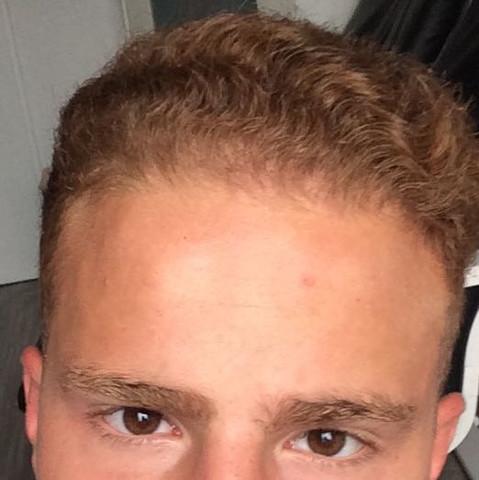 Dunne haare und haarausfall