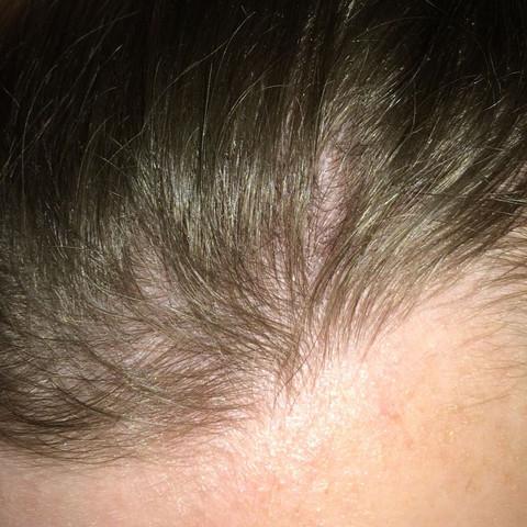 Wachsen Da Noch Haare Glatze