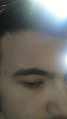 Wachsen Die Augenbrauen Nach Gesundheit Haare Style