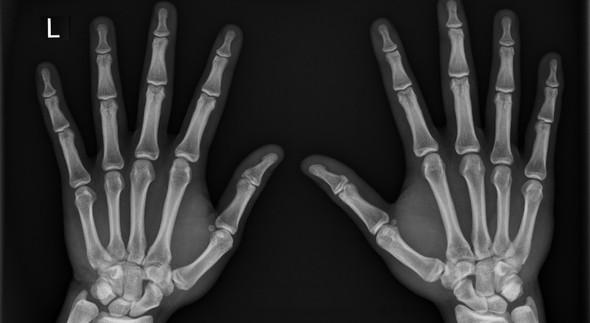 Hand Links Rechts, leicht eingeknickte Hand - (Fitness, Junge, Wachstum)