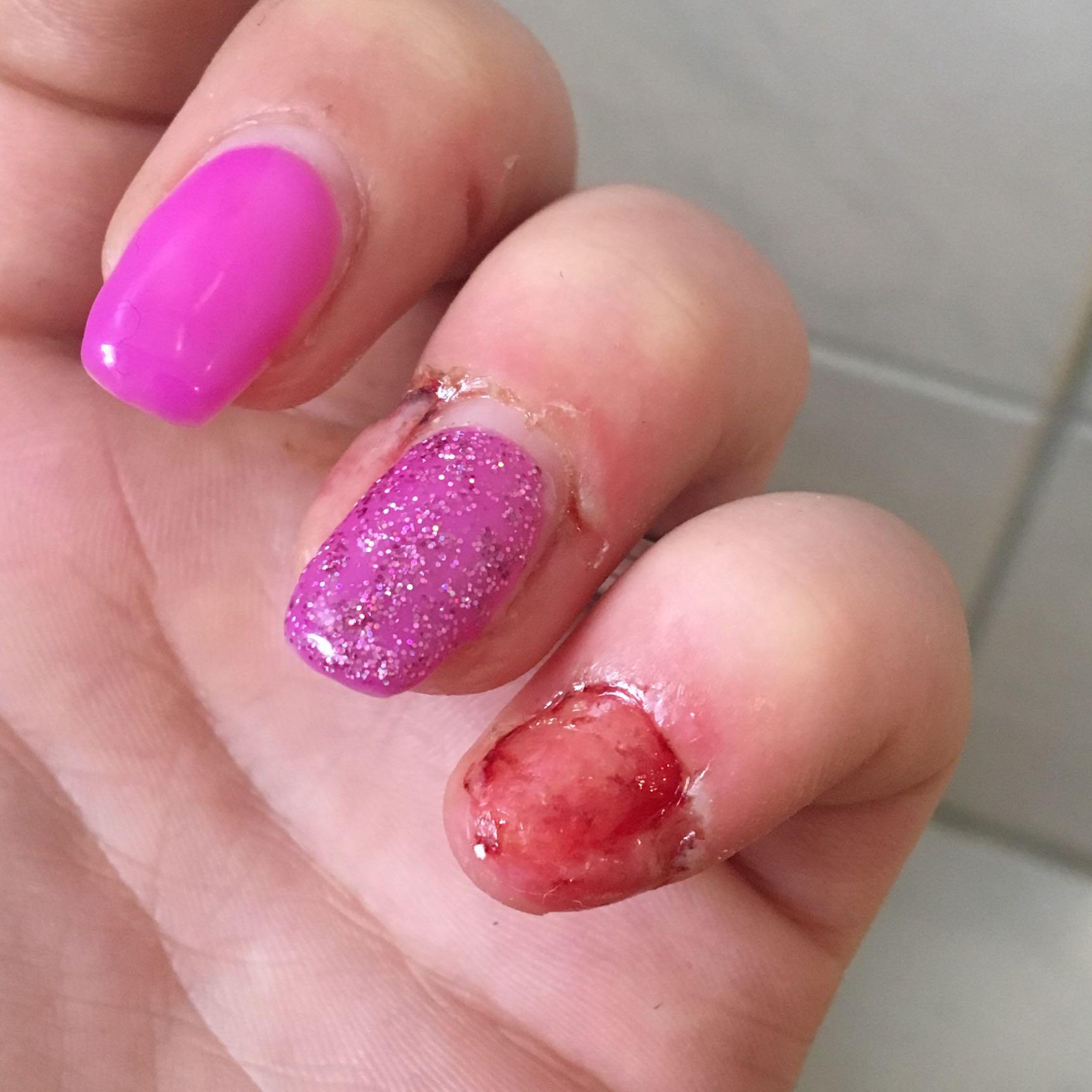 wächst mein fingernagel wieder nach wenn er komplett abgerissen ist ...