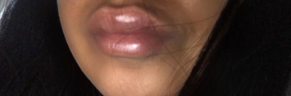 - (Gesundheit und Medizin, Beauty, Lippe)