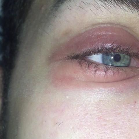 So sieht es an beiden Augen aus und wird immer schlimmer BITTE um Hilfe  - (Haut, Augen, rot)