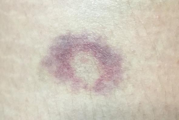blauer Fleck mit weißer Mitte - (Gesundheit und Medizin, Flecken, blau)