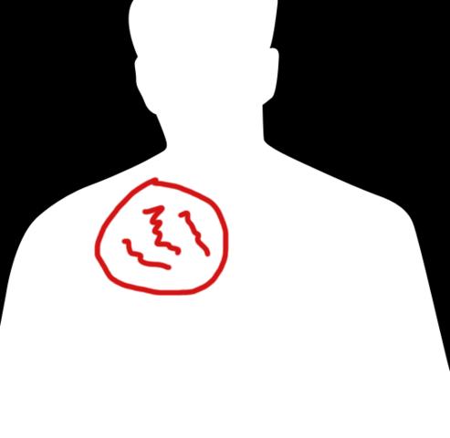 rückenansicht - (Menschen, Rücken, Rückenschmerzen)