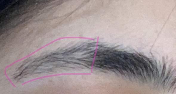 Warum fallen meine Augenbrauen mit 13 aus?