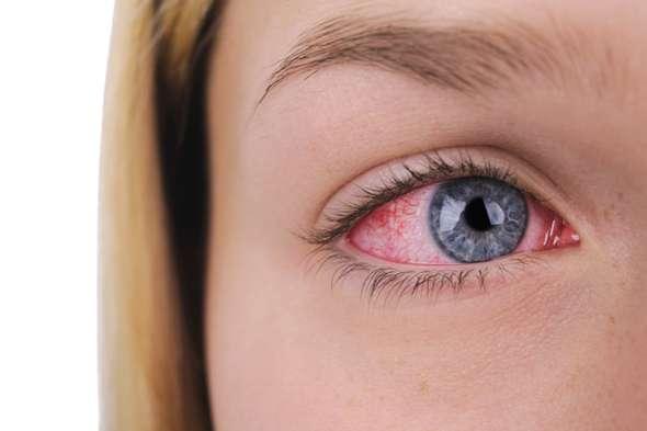 - (Gesundheit und Medizin, Rote Augen, trockene Augen)