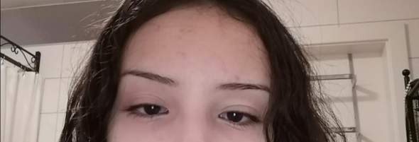 Warum habe ich aufeinmal auf meinem rechten Auge 2 Augenlider?