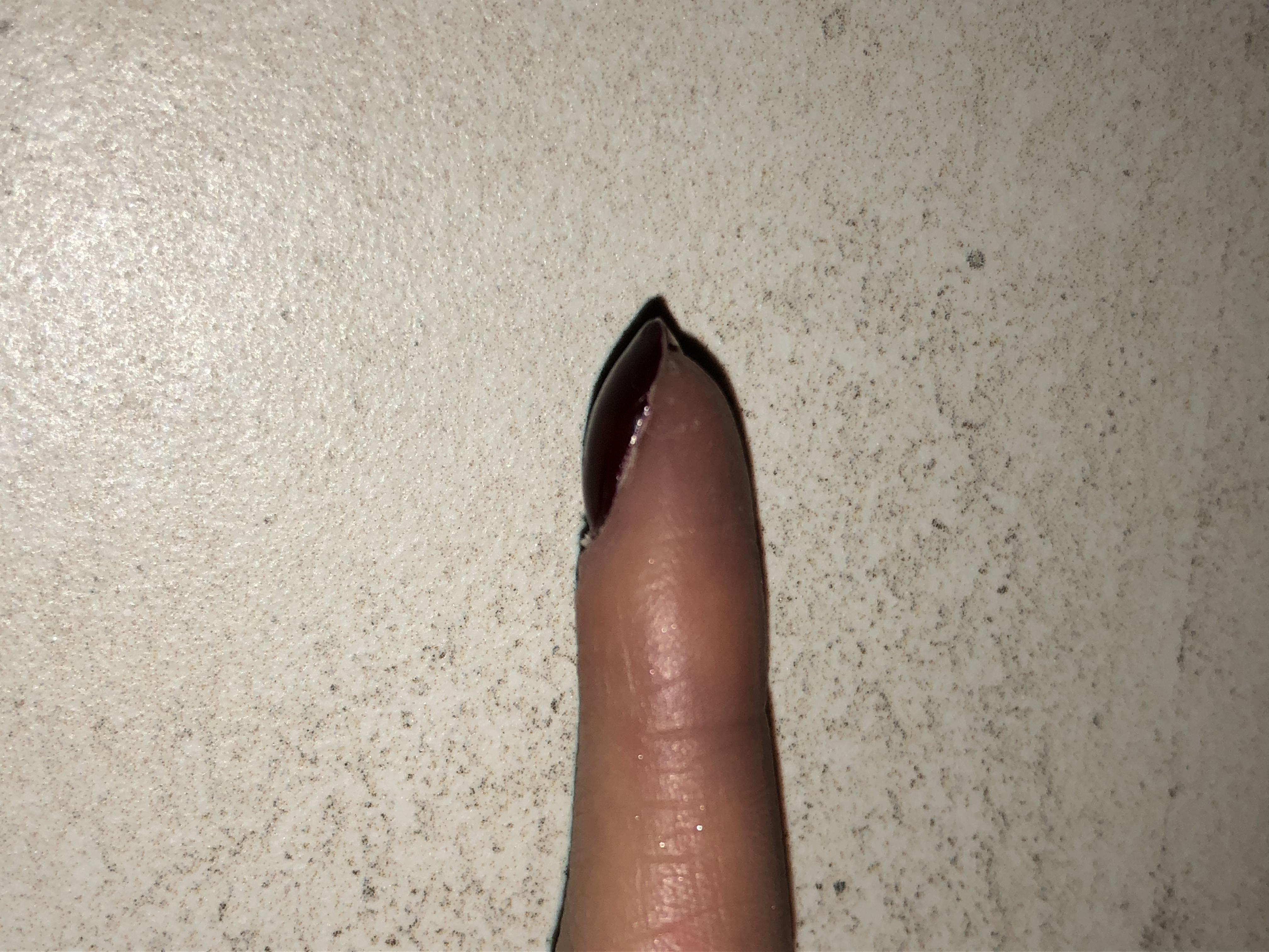 Warum ist mein Nagel so komisch geform? (Gesundheit, Nägel, Finger)