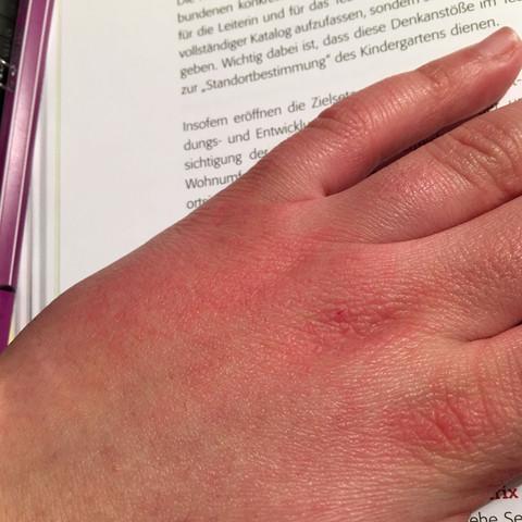 Das ist die hand - (Haut, Hand, rot)