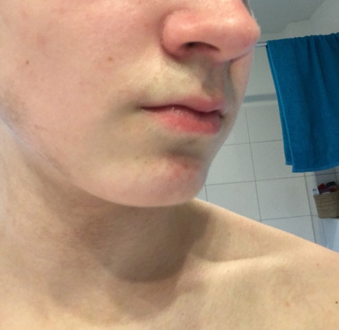 Nase trockene haut Trockene Haut