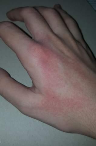 Warum kriege ich im Winter immer so einen Ausschlag an den Händen?