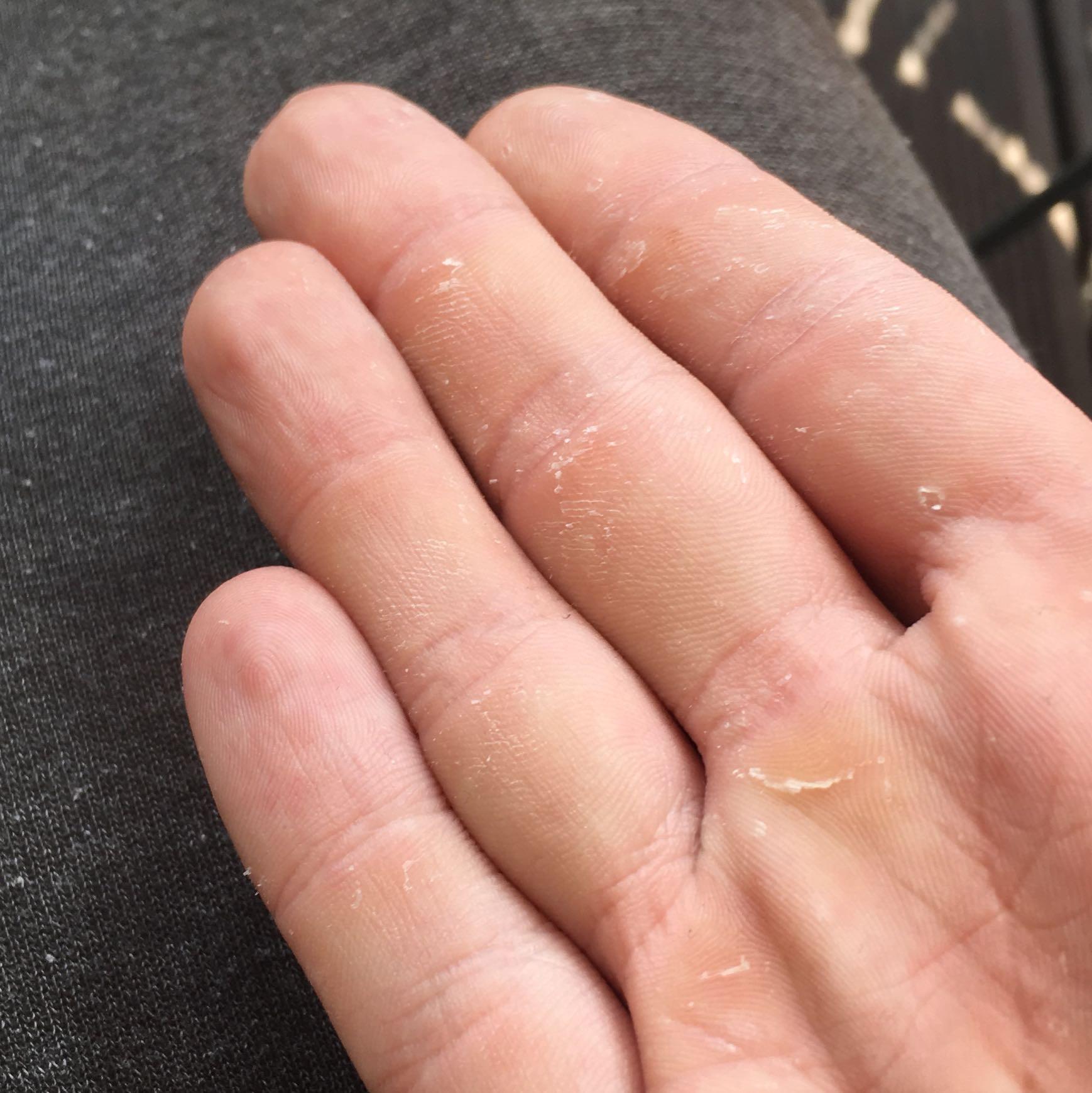 Haut Schält Sich An Händen Und Füßen