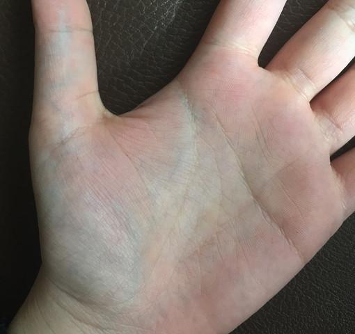 Dicke Blaue Adern An Den Händen