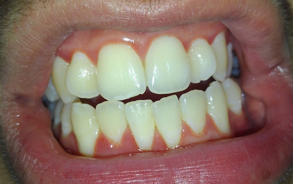 Ich hatte schon immer Probleme mit meinem Zahnfleisch, da dieser sehr empfindlic - (Zähne, Zahnfleisch)