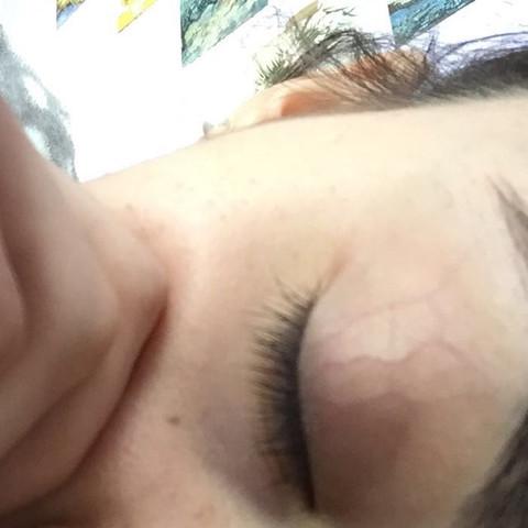 Mein Augenlid - (Nerven, müdigkeit, Augenlid)