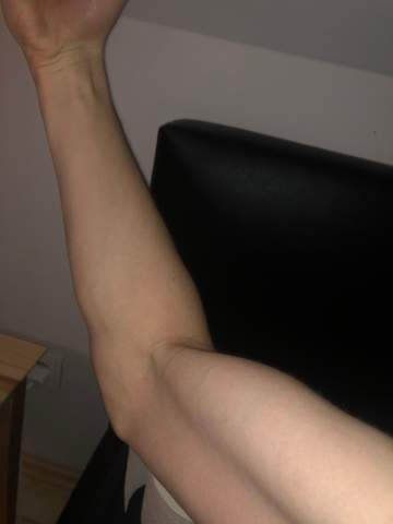 Warum sind meine Arme so?