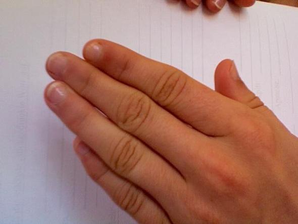 Linke Hand - (Pflege, Hand, Finger)