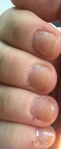 Warum sind meine Fingernägel gelb?