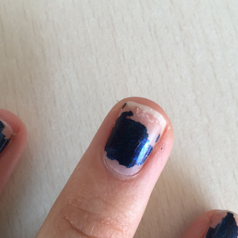 warum sind meine n gel br chig magersucht nagellack fingern gel. Black Bedroom Furniture Sets. Home Design Ideas