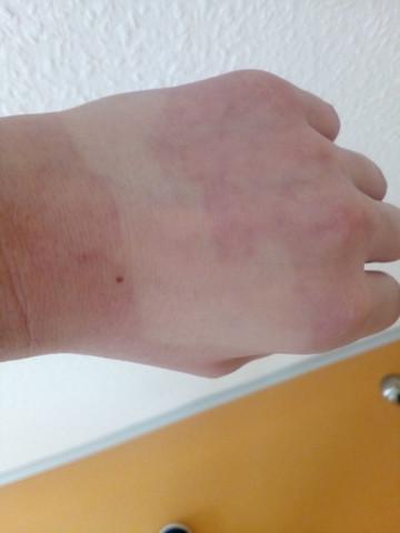 Na dem desinfizieren immer so - (Gesundheit, Hand)