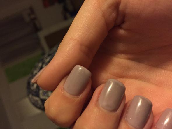 Bild 2 - (Nägel, schwarze Flecken)
